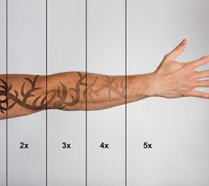 indikation_tattooentfernung
